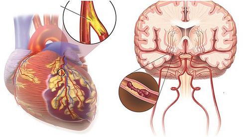 Cuộc chiến chống tai biến mạch máu não
