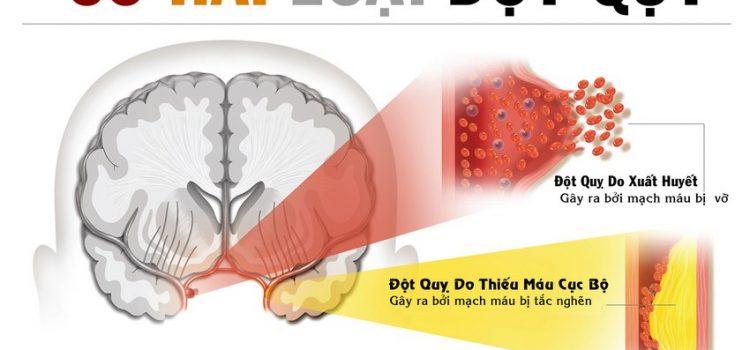 Những món ăn tốt cho người bị tai biến mạch máu não