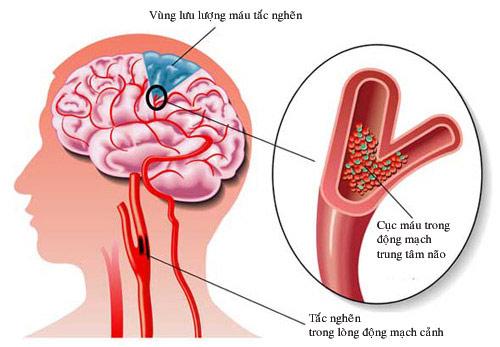 Nhận biết các triệu chứng thiếu máu não cục bộ