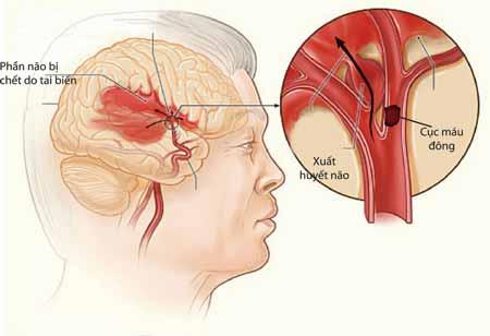 Phân biệt xuất huyết não và nhồi máu não