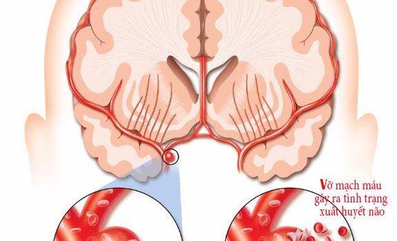 Vỡ mạch máu não: Nguyên nhân, triệu chứng và cách điều trị