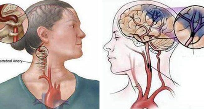 Tai biến mạch máu não giai đoạn đầu có nguy hiểm không?