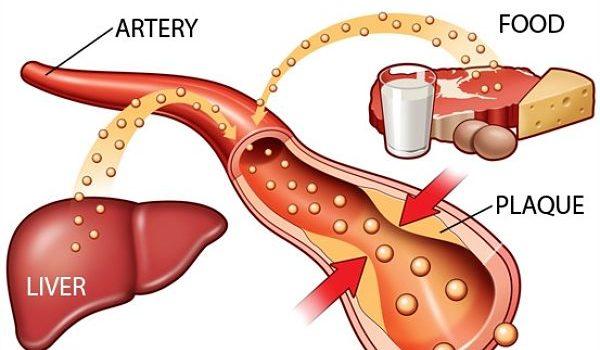 Cholesterol có phải là nguyên nhân gây nhồi máu cơ tim và tai biến mạch máu não không?