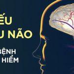 Dấu hiệu điển hình của bệnh thiếu máu não: Hãy cảnh giác sớm để tránh bị đột quỵ bất ngờ - Ảnh 1