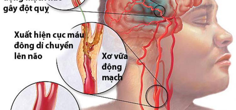 Tai biến mạch máu não là gì và cách phòng bệnh hiệu quả