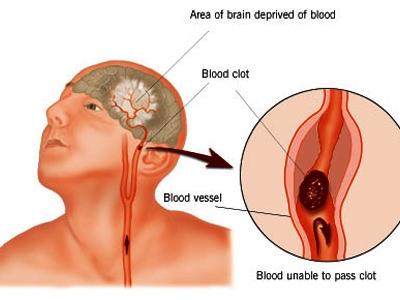 Bệnh tai biến mạch máu não và những nguyên nhân gây bệnh