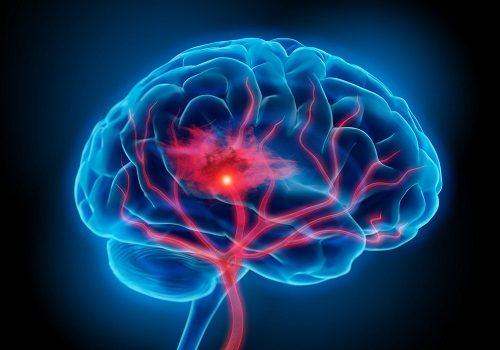 Tại sao đột quỵ não ngày càng trẻ hóa