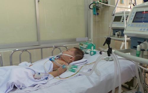 Báo động tình trạng trẻ em bị tai biến mạch máu não sớm