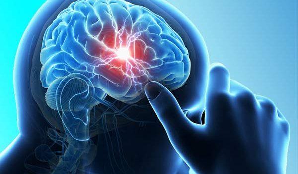 Chuyện gì sẽ xảy ra khi bị xuất huyết não?