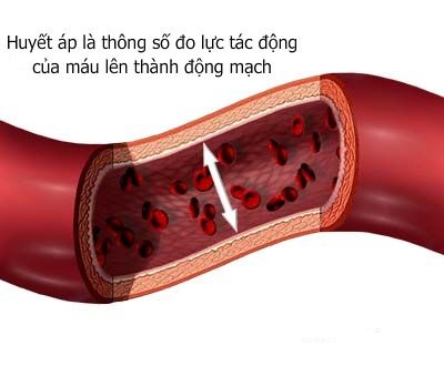 Bệnh mạch vành, huyết áp và tai biến mạch máu não
