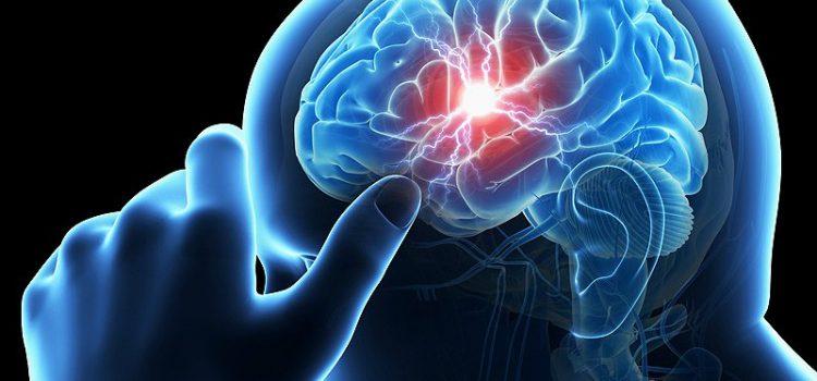 Xuất huyết não có chữa được không?