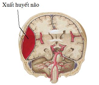 Điều gì sẽ xảy ra khi bị xuất huyết não?
