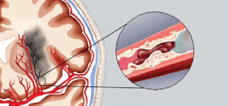 Nguyên nhân nhồi máu não là gì?