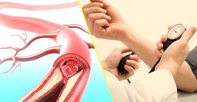 Tăng huyết áp dẫn đến hình thành xơ vữa động mạch như thế nào?