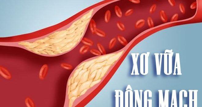 Quá trình hình thành xơ vữa động mạch – nguyên nhân gây đột quỵ