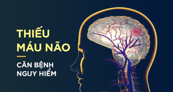5 dấu hiệu dễ bị nhầm lần với bệnh khác của thiếu máu não khiến nhiều người tử vong nhanh chóng