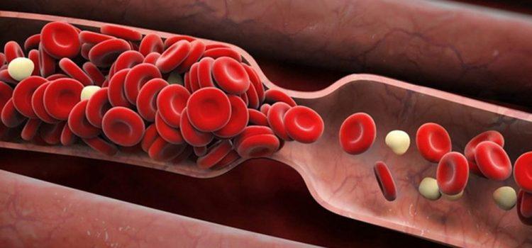 Phòng ngừa máu đông, kiểm soát huyết áp bằng thảo dược tự nhiên