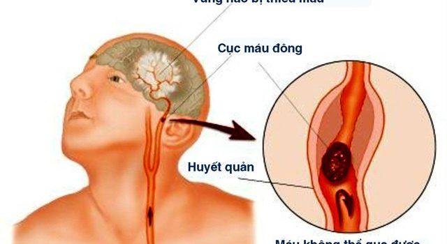 Triệu chứng của bệnh nhồi máu não