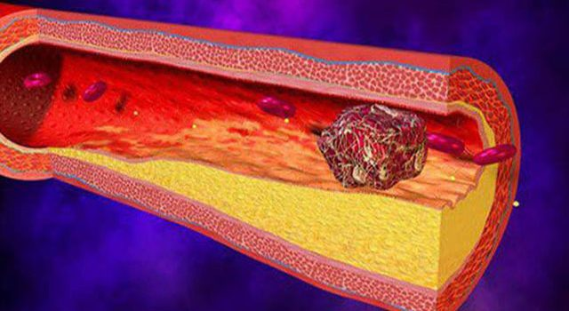 Những hậu quả nghiêm trọng của bệnh xơ vữa động mạch mà bạn không ngờ
