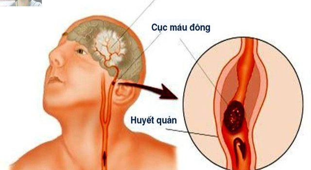 Nguyên nhân, triệu chứng, cách phòng ngừa và điều trị bệnh nhồi máu não