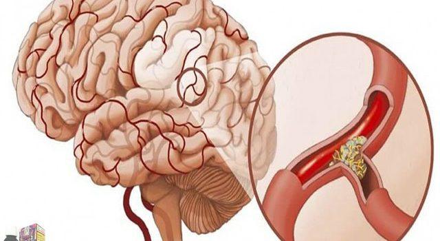 Những nguyên nhân gây tắc mạch máu não và cách phòng chữa bệnh