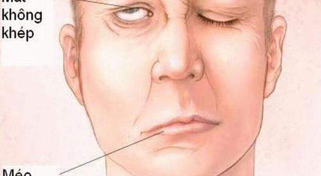 7 Dấu hiệu của bệnh tai biến bạn càng nhận biết sớm càng tốt