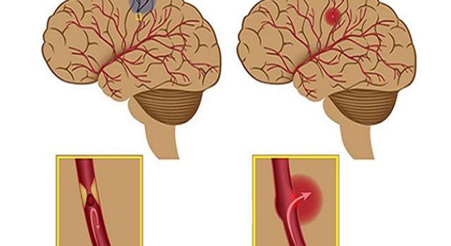 3 Nguyên nhân cơ bản gây tai biến mạch máu não