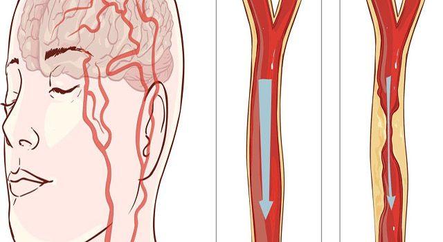 Cách điều trị tai biến mạch máu não tại nhà hiệu quả