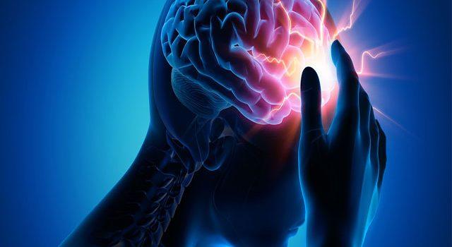 6 Điểm quan trọng trong điều trị đột quỵ nhất định bạn phải biết