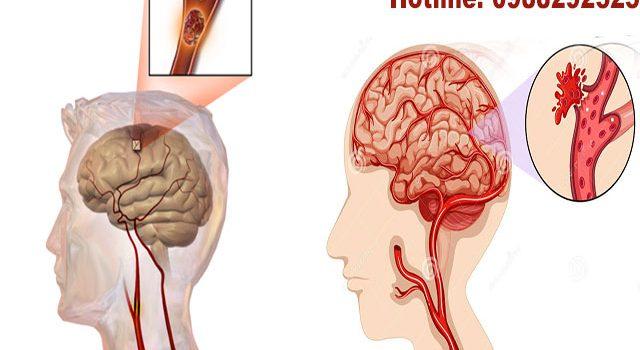 Các giai đoạn của bệnh tai biến mạch máu não