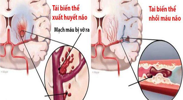 Giải pháp điều trị tai biến mạch máu não tốt nhất cho người bệnh