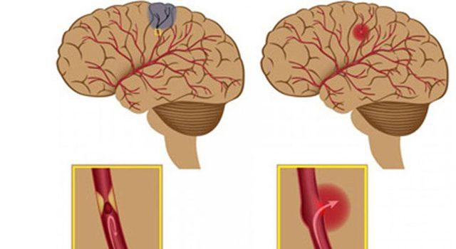 20 câu hỏi giúp bạn hiểu rõ hơn về bệnh đột quỵ não