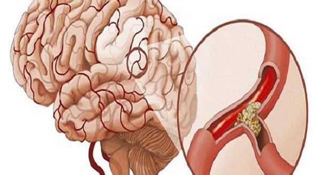Chế độ dinh dưỡng tốt cho sức khỏe người bị nhồi máu não