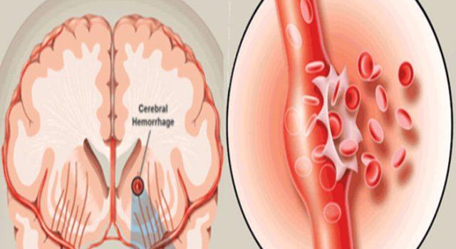 Phương pháp điều trị và chăm sóc tốt cho người bệnh xuất huyết não