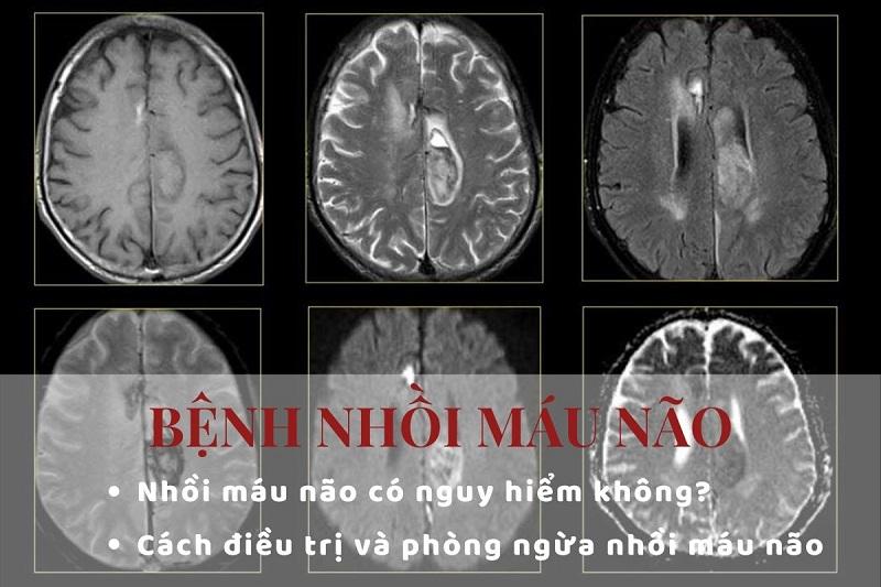 Bệnh nhồi máu não và 4 điều cơ bản cần phải biết
