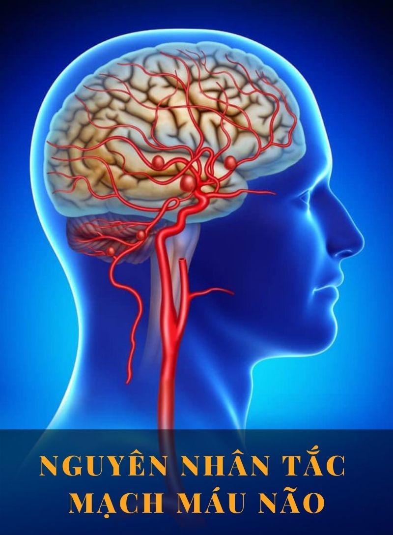 3 nguyên nhân tắc mạch máu não bạn cần biết
