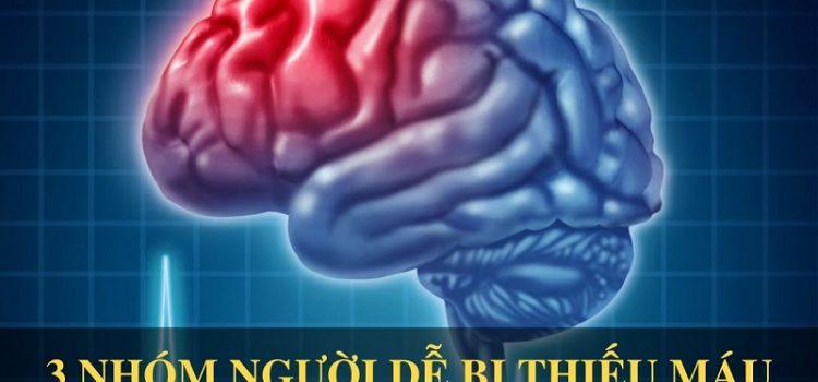 3 nhóm người dễ bị thiếu máu não nhất