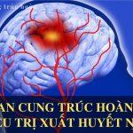 Xuất huyết não triệu chứng và những biến chứng nguy hiểm