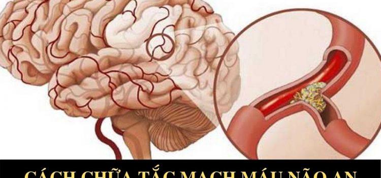 Tắc mạch máu não có nguy hiểm không? Cách phòng ngừa an toàn