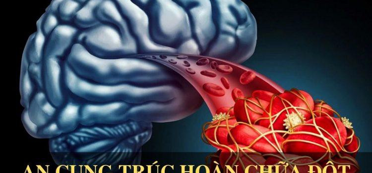 5 đối tượng dễ mắc đột quỵ não nhất