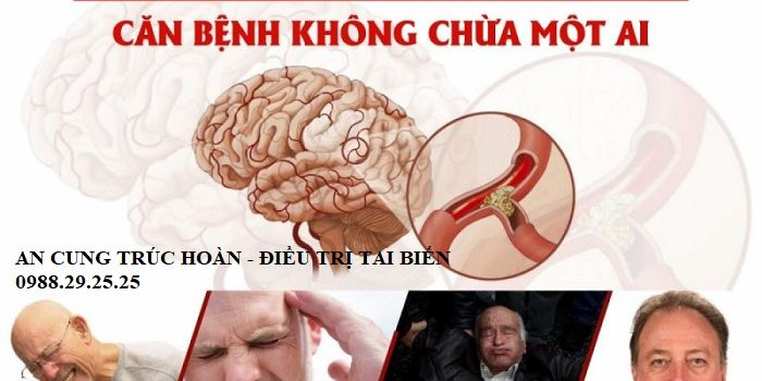Nguyên nhân gây nên tai biến mạch máu não