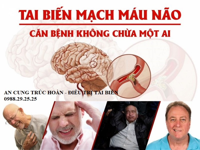 nguyên nhân tai biến mạch máu não