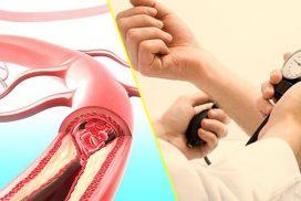 huyết áp cao biến chứng não