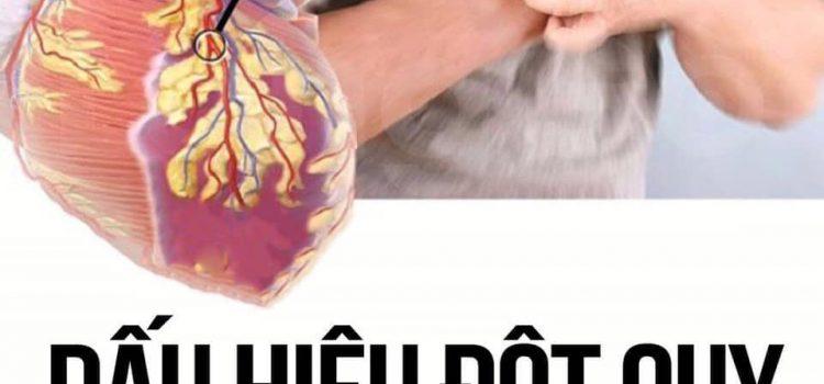 Những dấu hiệu đột quỵ não trước 30 ngày đừng bỏ qua