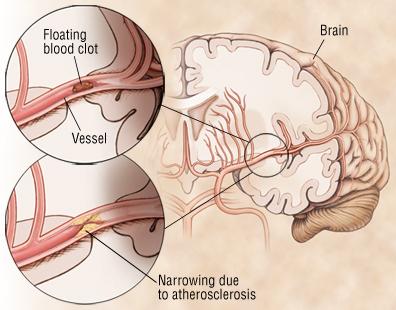 nguyên nhân thiếu máu não