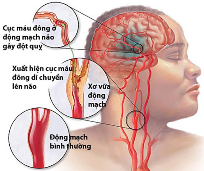 nguyên nhân xuất huyết não
