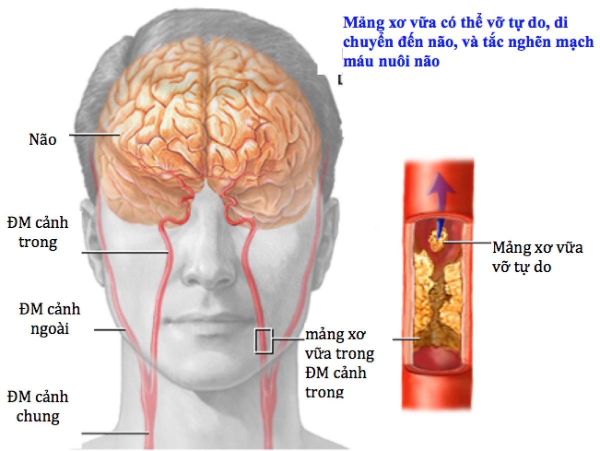 thiếu máu não thoáng qua là gì