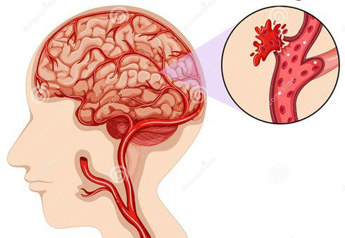 xuất huyết não là gì